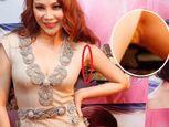 Những vết tích thẩm mỹ rõ rệt của sao Việt - Ảnh số 10