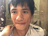 Vụ cô gái bị kẻ cướp xe máy kéo lê trên đường ở Đồng Nai: Lộ danh tính nghi phạm