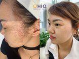 Tư vấn tiêu dùng - Giãn mao mạch vùng mặt có nguy hiểm không & giải pháp điều trị?