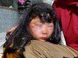 Vụ nữ sinh lớp 6 bị giật tóc, đánh ngất xỉu trong lô cao su: Người thân tiết lộ bất ngờ