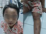 Cha về quê, con gái 6 tuổi bị vợ chồng cô ruột đánh đập tàn bạo