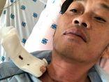 Đại diện NSƯT Hoài Linh tiết lộ phải phẫu thuật ung thư tuyến giáp cách đây vài tháng