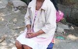 Cô gái 18 tuổi nhưng mang gương mặt bà lão trăm tuổi đón sinh nhật lần thứ 18