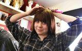 Bé gái 15 tuổi hỏng tủy vì dùng thuốc trị mụn trứng cá quá liều