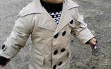 Xót xa cậu bé 2 tuổi đáng yêu bị lột da toàn thân vì phút bất cẩn của mẹ