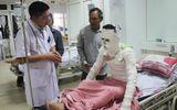 Lời kể của nạn nhân trong vụ nổ máy ép gỗ ở Nghệ An