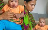 Ấn Độ phẫu thuật thành công cho bé sơ sinh có khối u to như quả bóng sau đầu