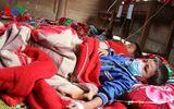 Nghệ An: Một cháu bé tử vong do dịch sởi Rubella