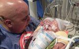 """""""Em bé"""" hai đầu tử vong 48 giờ sau khi chào đời"""