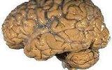 Những sự thật kinh ngạc về não người