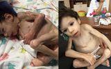 Em bé bị bỏ đói 7 năm liền trong trại trẻ mồ côi giờ ra sao?