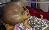 """Mắc bệnh lạ, em bé có đầu to bất thường như """"người ngoài hành tinh"""""""