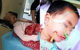 Bé gái 3 tuổi ngã cầu thang bị đũa đâm thọc sâu vào não sống sót diệu kỳ