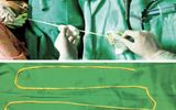 Bác sĩ dùng tay không kéo sán dài 2m từ miệng bệnh nhân