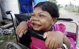 Mắc bệnh lạ, cô gái 24 tuổi mang hình hài đứa trẻ