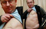 Người đàn ông 3 lần chống chọi với căn bệnh ung thư vú