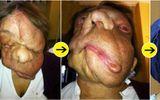 """Mang """"gương mặt quỷ"""", người phụ nữ bị xa lánh nhưng 3 năm sau ai cũng ngạc nhiên"""