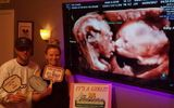 Vợ chồng trẻ bất ngờ trông thấy hành động của cặp song thai trong bụng mẹ khi đi siêu âm