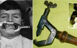 """Những thiết bị nha khoa thời """"ông bà anh"""" khiến bạn khóc thét khi nhìn thấy"""