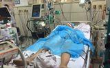Vụ chạy thận nhân tạo ở Hòa Bình: Bệnh nhân thứ 8 đã tử vong