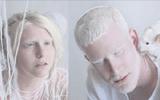 """Loạt ảnh cho thấy người bị bệnh bạch tạng sở hữu """"màu da đẹp nhất thế giới"""""""