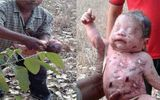 Bé trai sơ sinh bị đâm 14 nhát dao rồi chôn sống ở Thái Lan và câu chuyện hồi sinh kỳ lạ