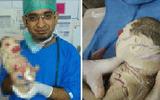 Mắc bệnh hiếm, bé sơ sinh bao phủ trong lớp vỏ dày kỳ lạ