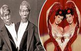 Những cặp 'dị nhân' sinh đôi dính liền nổi tiếng khắp thế giới