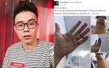 Top 3 Vietnam Idol 2014 Đông Hùng bị chủ nợ chém vì mẹ ruột