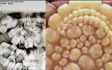 Ca bệnh kì lạ: Thiếu niên có tới 232 chiếc răng mọc thừa