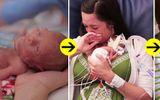 Sự thay đổi khó tin sau 1 năm của bé sinh non, nhỏ bằng quả dưa chuột