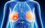 Kỹ thuật mới giúp bệnh nhân ung thư vú khỏi hóa trị liệu không cần thiết