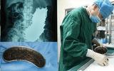 Người đàn ông đau bụng 2 tháng, bác sĩ phát hiện 600 cái đinh thép nằm trong dạ dày