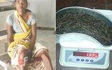 Mắc bệnh lạ: Người phụ nữ đau đớn vì hơn 70 cây kim ẩn sâu trong chân