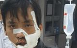 Điều tra vụ 2 nhóm thanh niên cầm mã tấu chém nhau, 5 người bị thương