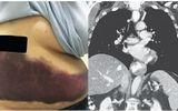 Người phụ nữ ho mạnh tới nỗi gãy xương sườn, thâm tím vùng bụng