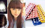 Cô gái đột quỵ vì dùng thuốc tránh thai ở tuổi 17
