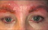 Làm đẹp lông mày: Chẳng ngờ bị nhiễm trùng, suýt tử vong