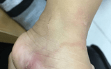 Về quê nghỉ hè, bé gái 5 tuổi bị giun xâm nhập cơ thể, bò lúc nhúc dưới da