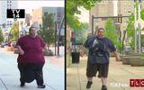 """Người đàn ông khốn khổ vì mắc bệnh lạ khiến """"của quý"""" nặng gần 32kg"""