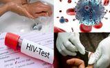 Khi nghi ngờ bị phơi nhiễm HIV cần xử lý như thế nào?