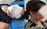 """Tin tức mới nhất vụ chồng dùng dao rạch mặt, cắt gân chân """"vợ hờ"""" ở Bắc Giang"""