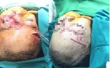 Bé gái 31 tháng tuổi bị chó nhà nuôi cắn nhiều nhát vào mặt