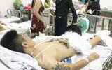 """Bố thanh niên bị truy sát phải cưa chân ở Phú Thọ: """"Nhóm côn đồ quá dã man, tàn nhẫn"""""""