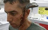 Bị dao dài 15cm đâm xuyên đầu vẫn đạp xe 800 m đến bệnh viện cầu cứu