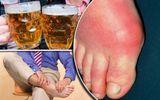 Bệnh gout cần kiêng ăn những gì? Người bệnh cần biết để chữa bệnh hiệu quả