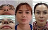 Viện Thẩm mỹ bác sĩ Lê Văn Sẽ: Địa chỉ cứu cánh của những ca phẫu thuật hỏng