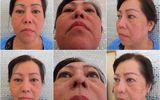 Bác sĩ Lê Văn Sẽ - Địa chỉ cứu cánh của những ca phẫu thuật hỏng