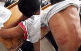 """Bé trai bị bố đánh đến nhập viện: """"Em không dám la hét, chỉ ôm tay vào mặt lăn dưới nền đất"""""""