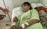 Cha cô gái 18 tuổi bị tra tấn đến sẩy thai: Gia đình nghi phạm ra giá 40 triệu để bị hại bãi nại